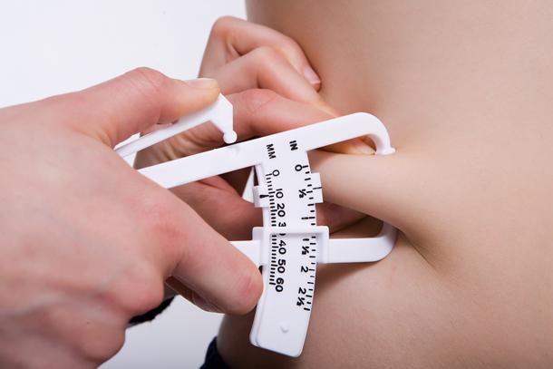 La obesidad es un tema de mucha preocupacion