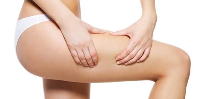Cosas que debes saber sobre la celulitis